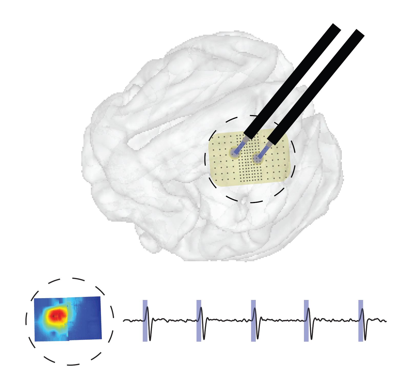 Large scale ontogenetic interface