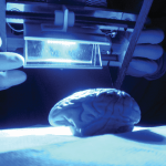 Illuminating the brain